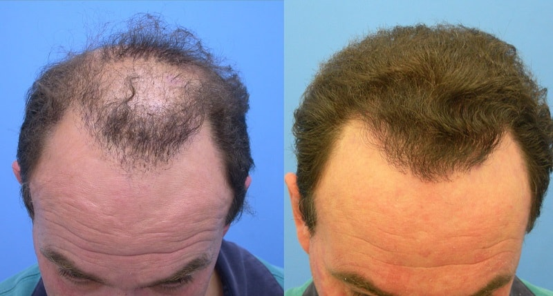 The reasons for the rising popularity of hair transplant surgery these days