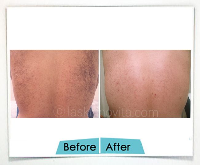 laser hair reduction in gurgaon
