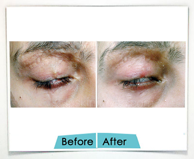 Surgical Scars treatment in Gurgaon
