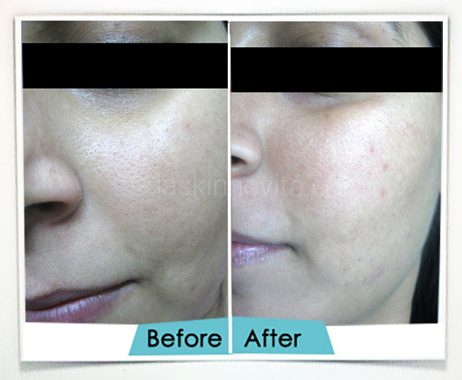 open pores treatment gurgaon