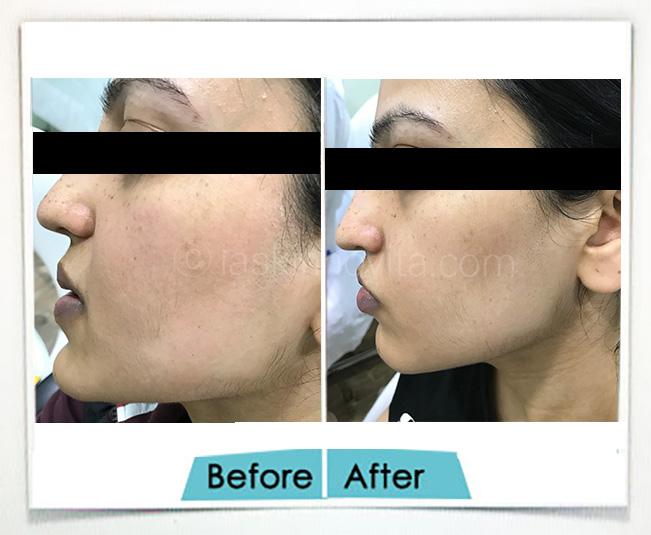 Skin Polishing Gurgaon