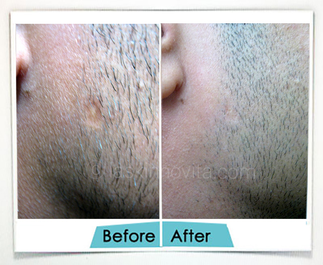 chicken pox removal in Gurgaon