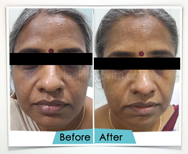 Radiance Treatment Gurgaon