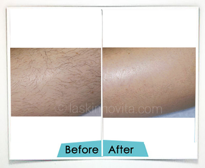 laser hair removal in Gurgaon