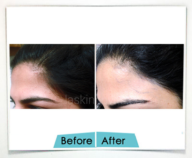 forehead reshaping Gurgaon