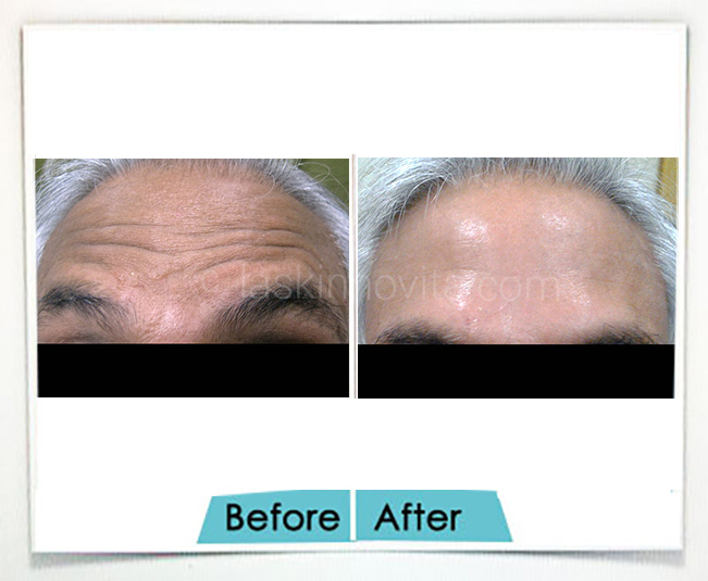 aesthetic procedure for anti ageing