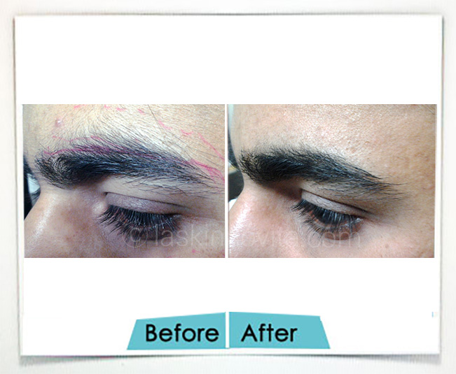 eyebrow laser hair reduction