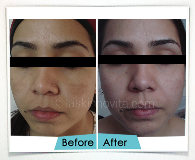Melasma treatment in Gurgaon
