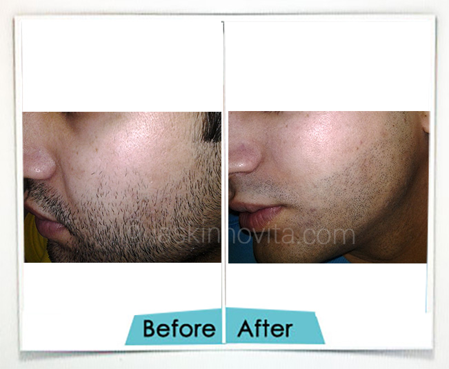 Beard Reshaping in Gurgaon