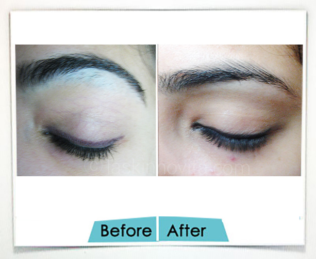 Eyebrow reshaping gurgaon
