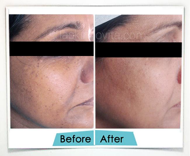 Dermatosis Papulosa Nigra before after