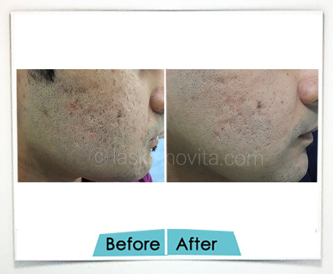 Acne Scars removal Gurgaon