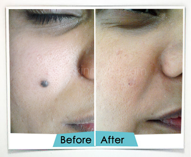 Mole Removal Treatment in Gurgaon