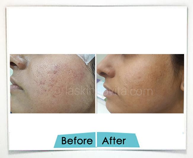 scar removal gurgaon