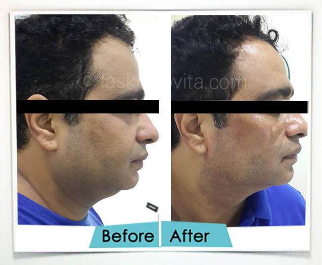 double chin reduction