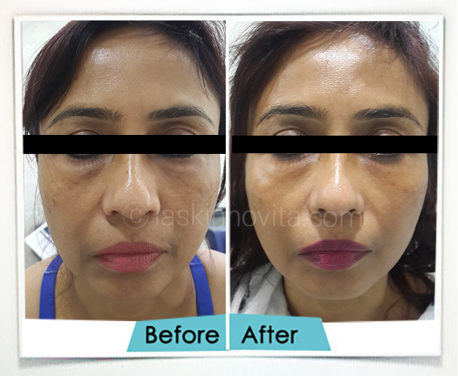 non surgical facelift gurgaon