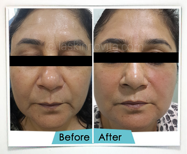 facelift in gurgaon