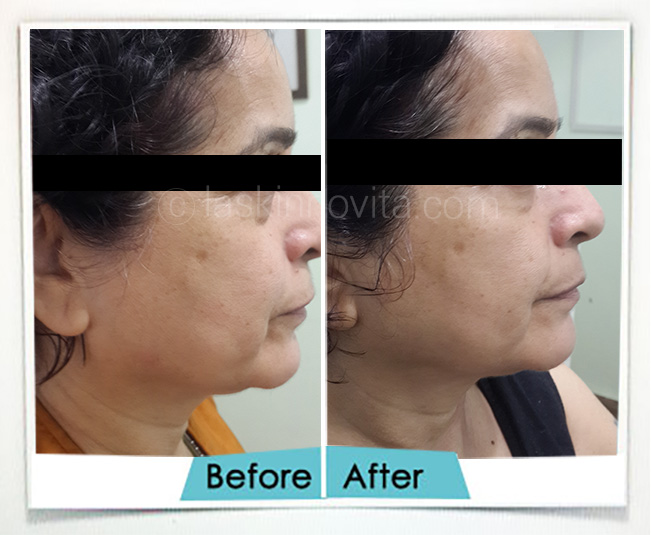 neck lift treatment