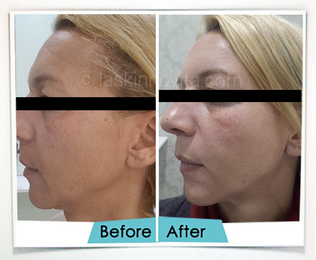 non surgical facelift and necklift