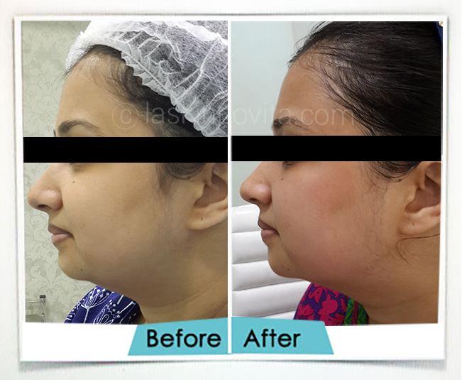 double chin reduction in gurgaon