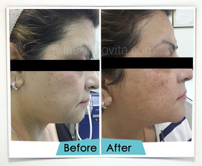 double chin reduction treatment