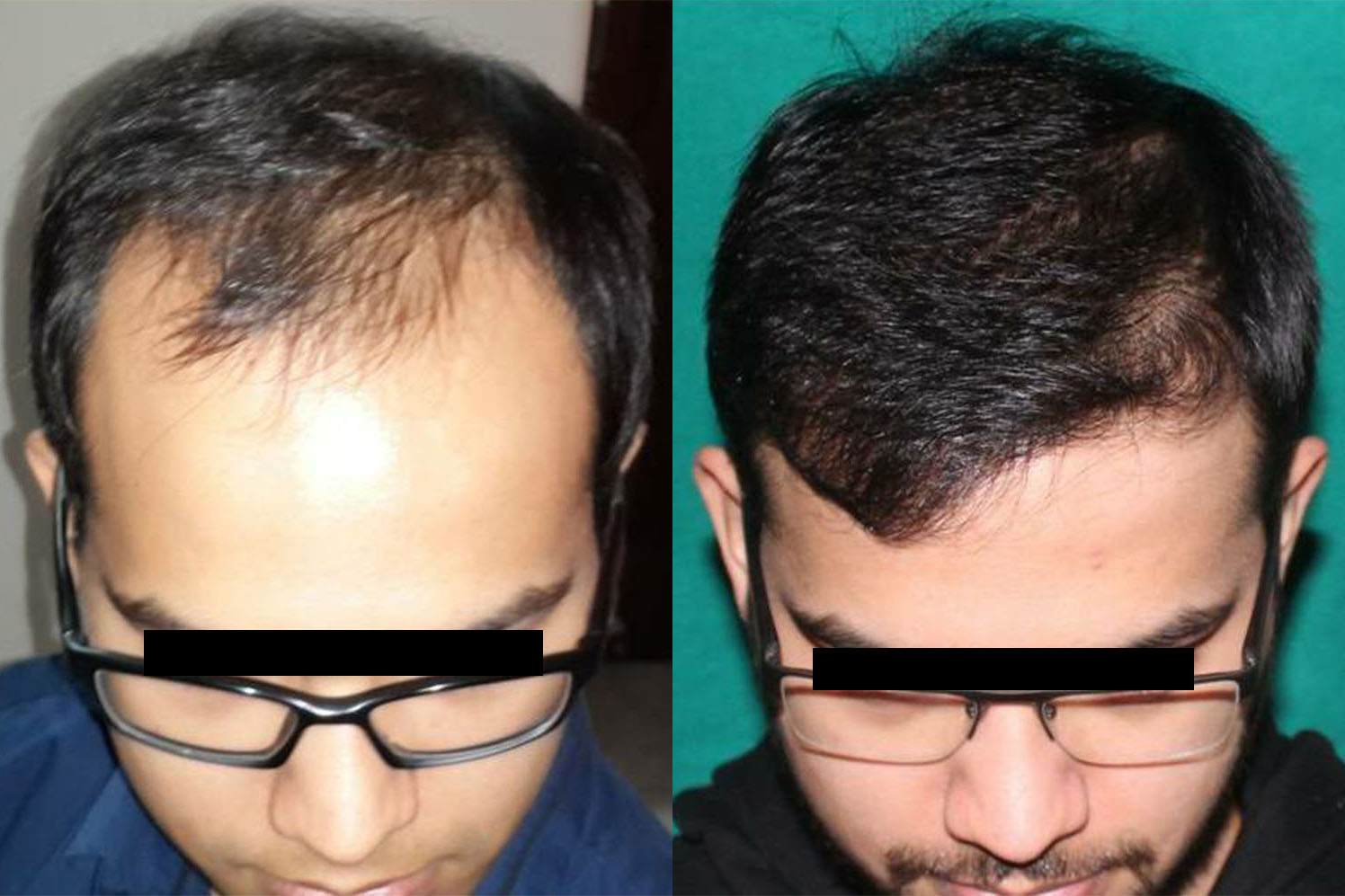 Two major merits of undergoing hair transplant surgery