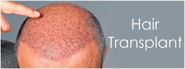 Are you suffering from baldness problem? The solution lies in hair transplant surgery!