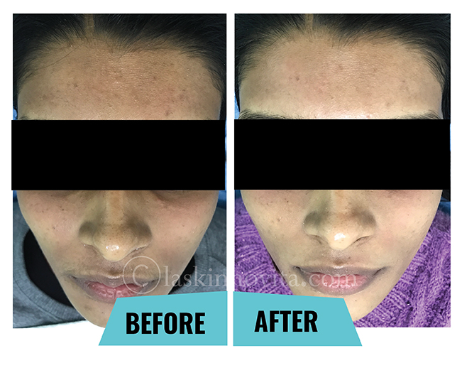 pigmentation treatment in gurgaon