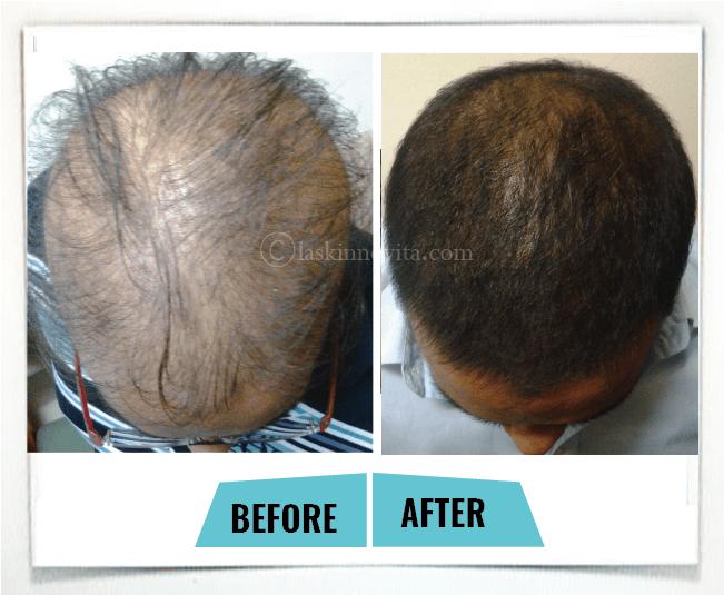 male hair loss3