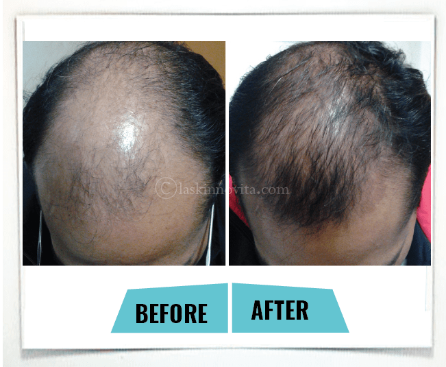 male hair loss4