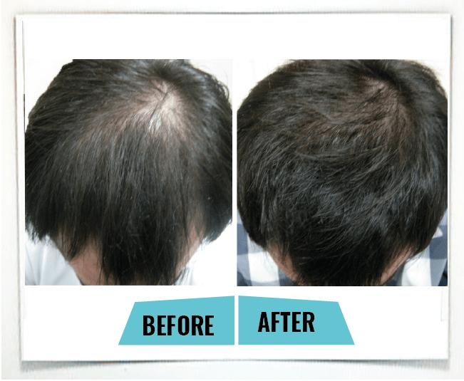 male pattern baldness1