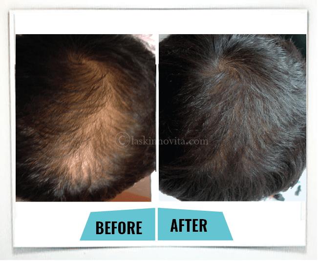 male pattern baldness3