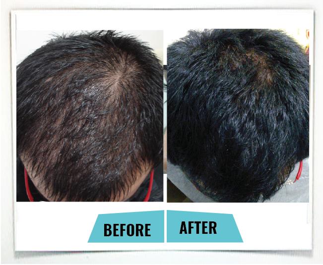male hair loss2