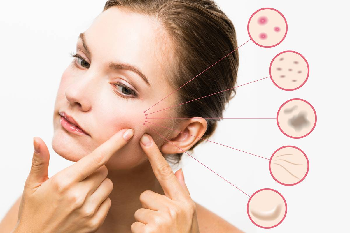 Get Clear and Acne Free Skin with Chemical Peel